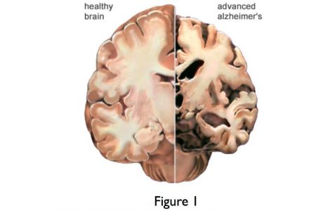 Early dementia and functional brain networks